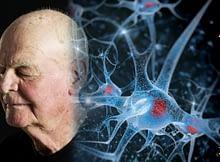 Halt The Aging Brain