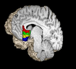 the subgenual prefrontal cortex is in red